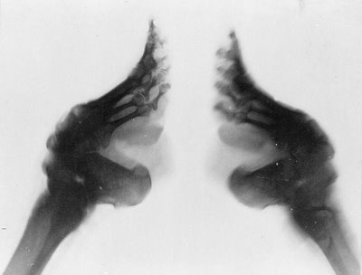Chinese-foot-binding-03